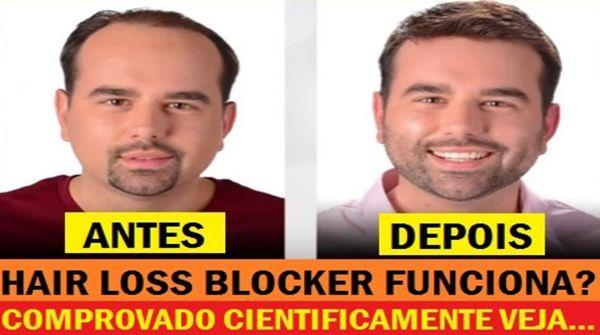 hairloss-blocker-antes-e-depois