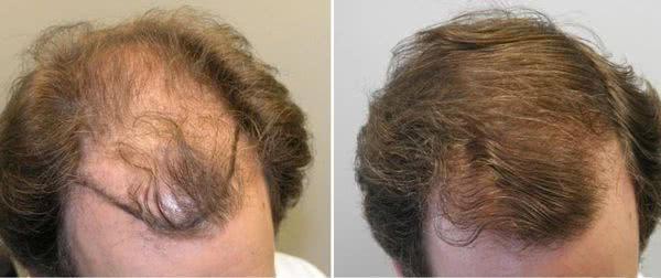 imecap-hair-comprar