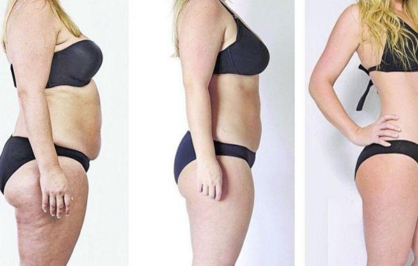 dieta-hcg-antes-e-depois