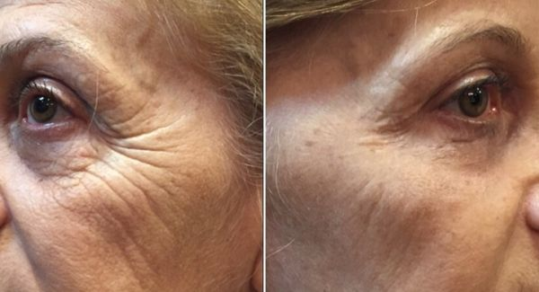instantly-ageless-antes-e-depois